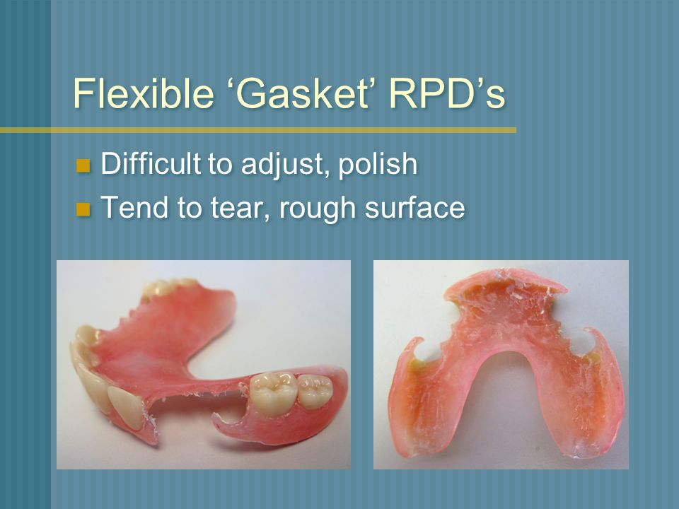 Flexible 'Gasket' RPD's