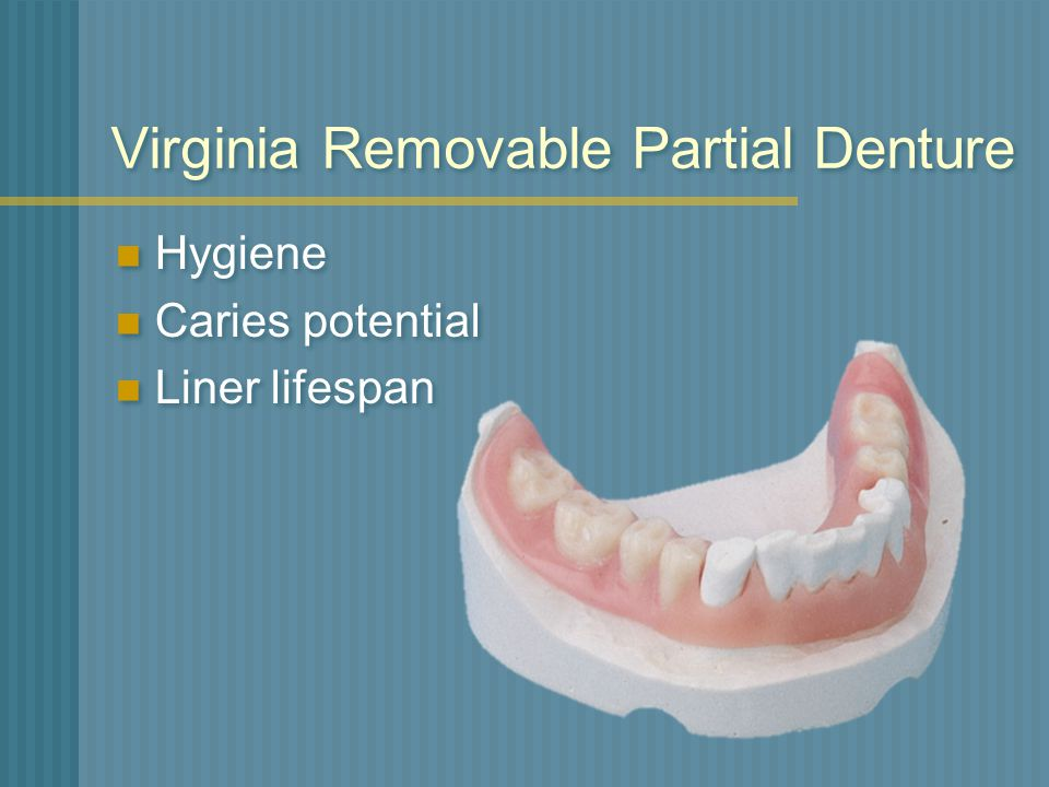 Virginia Removable Partial Denture