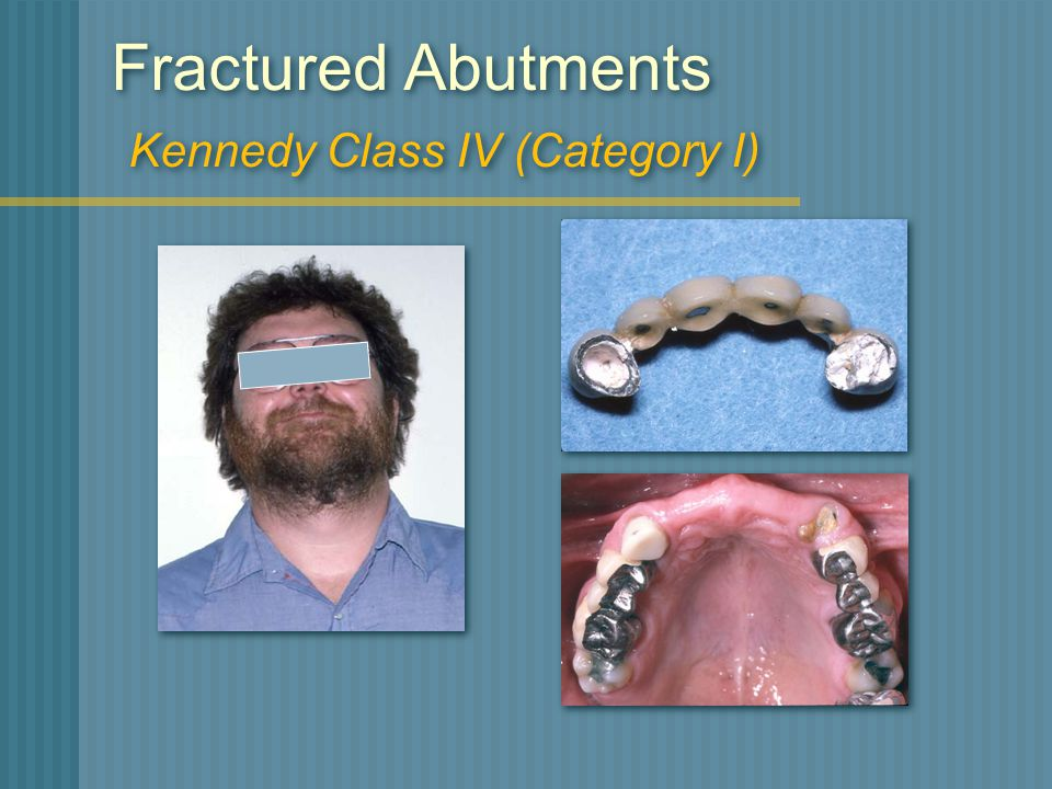Fractured Abutments Kennedy Class IV (Category I)
