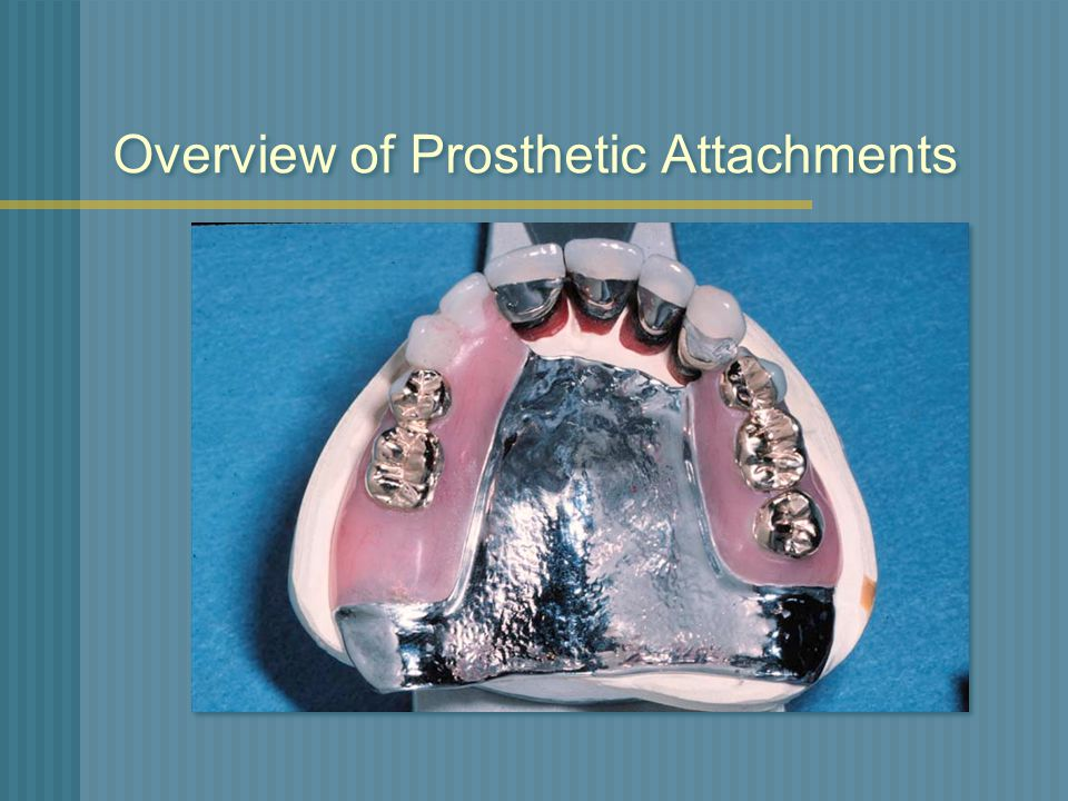 Overview of Prosthetic Attachments