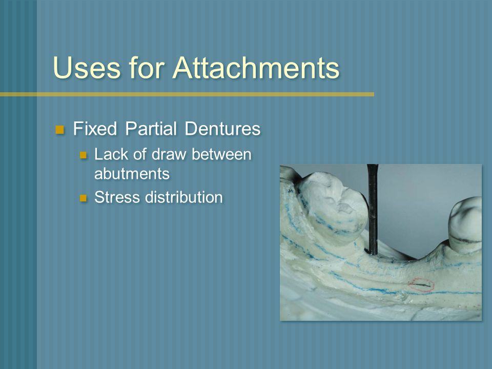 Uses for Attachments Fixed Partial Dentures
