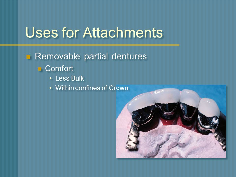 Uses for Attachments Removable partial dentures Comfort Less Bulk