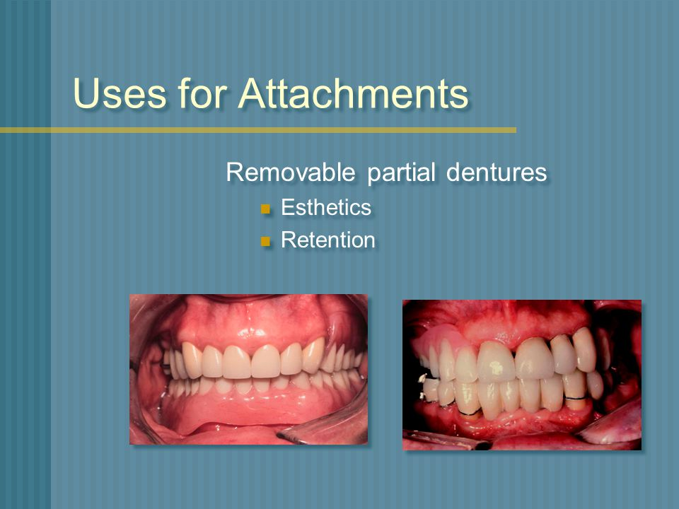 Uses for Attachments Removable partial dentures Esthetics Retention