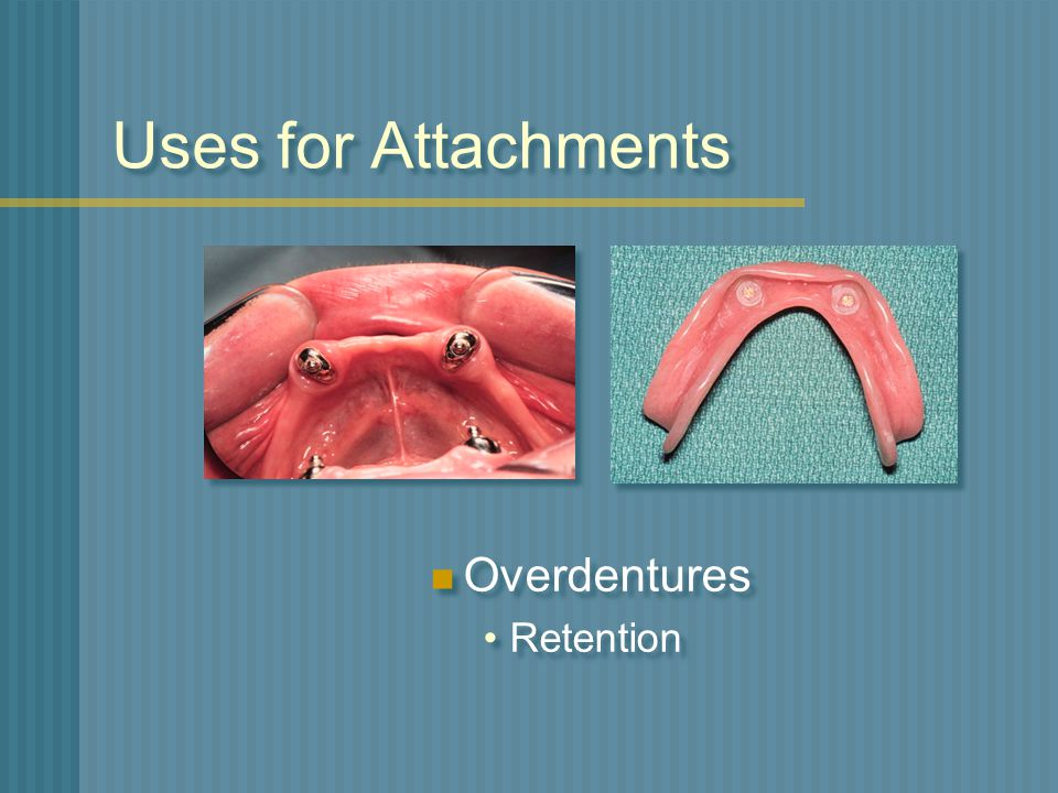 Uses for Attachments Overdentures Retention