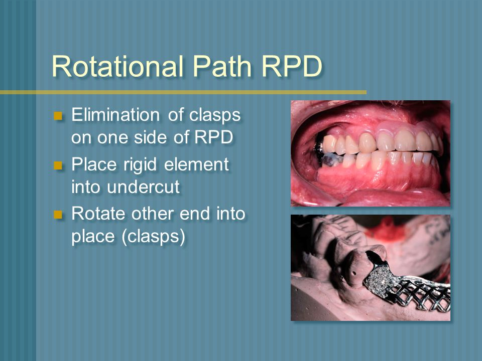 Rotational Path RPD Elimination of clasps on one side of RPD