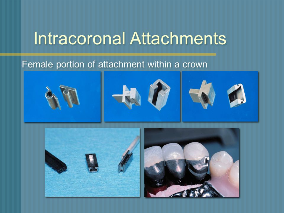 Intracoronal Attachments