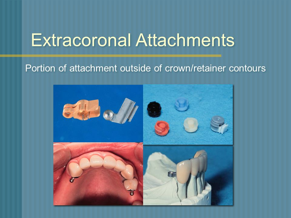 Extracoronal Attachments