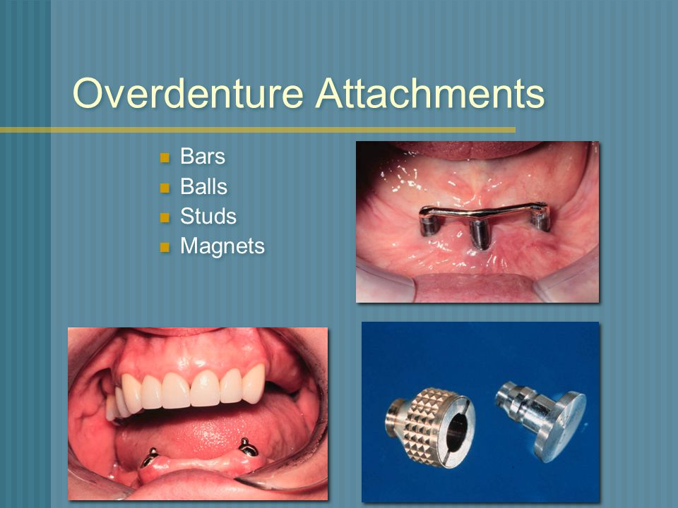Overdenture Attachments