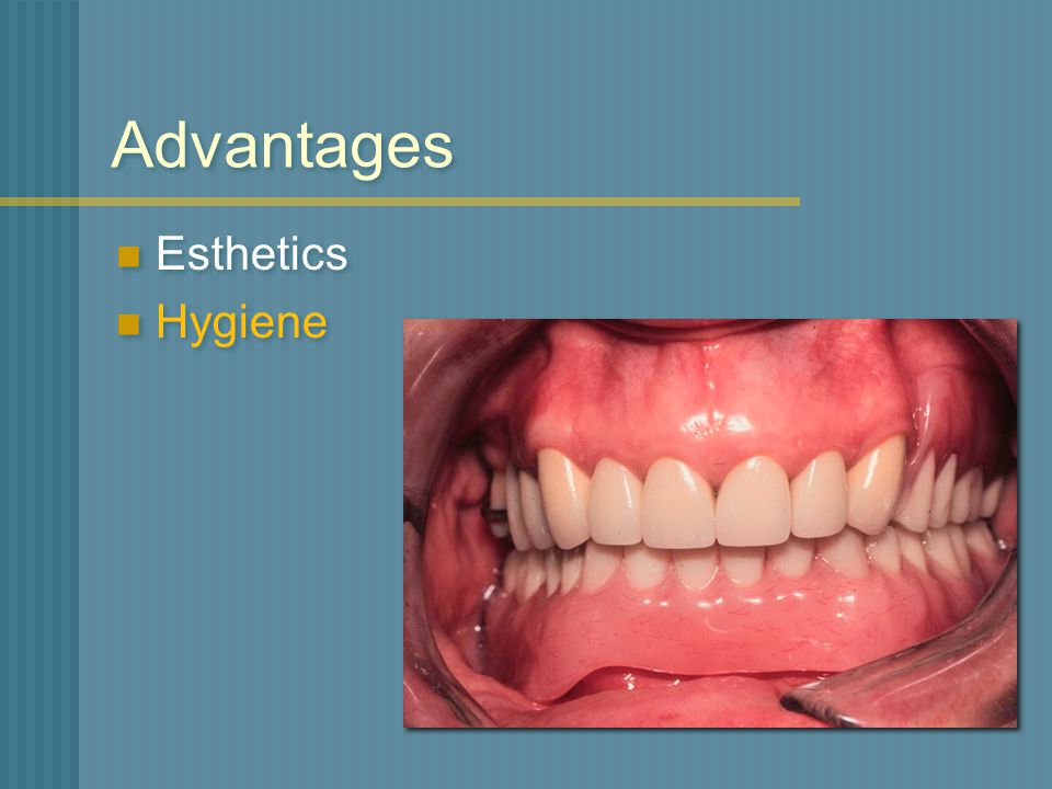 Advantages Esthetics Hygiene
