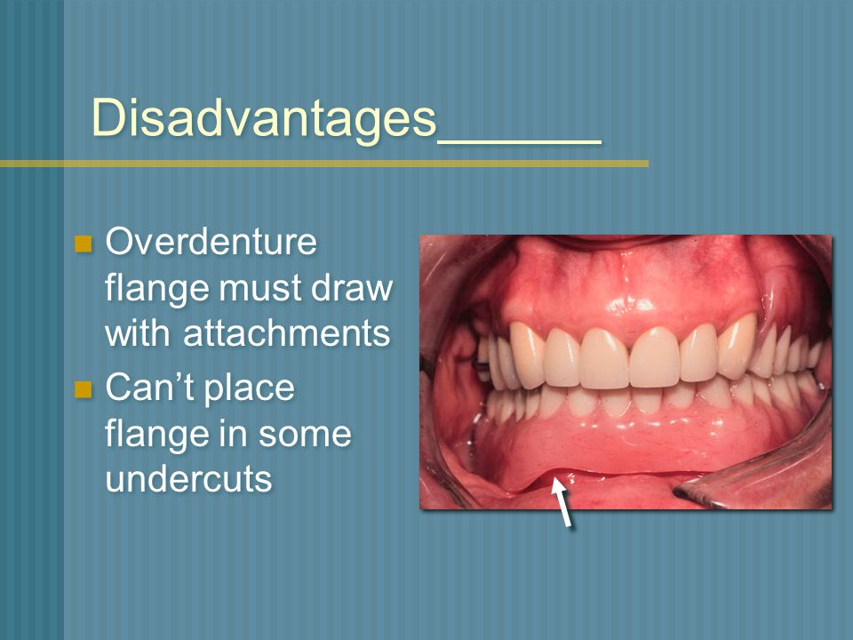 Disadvantages Overdenture flange must draw with attachments