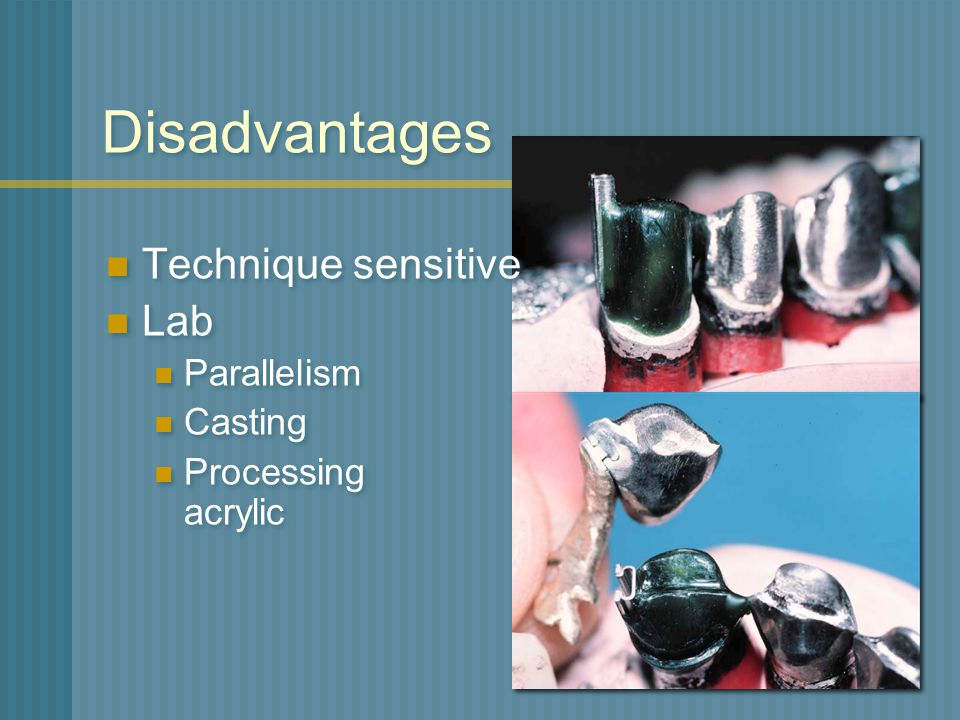 Disadvantages Technique sensitive Lab Parallelism Casting