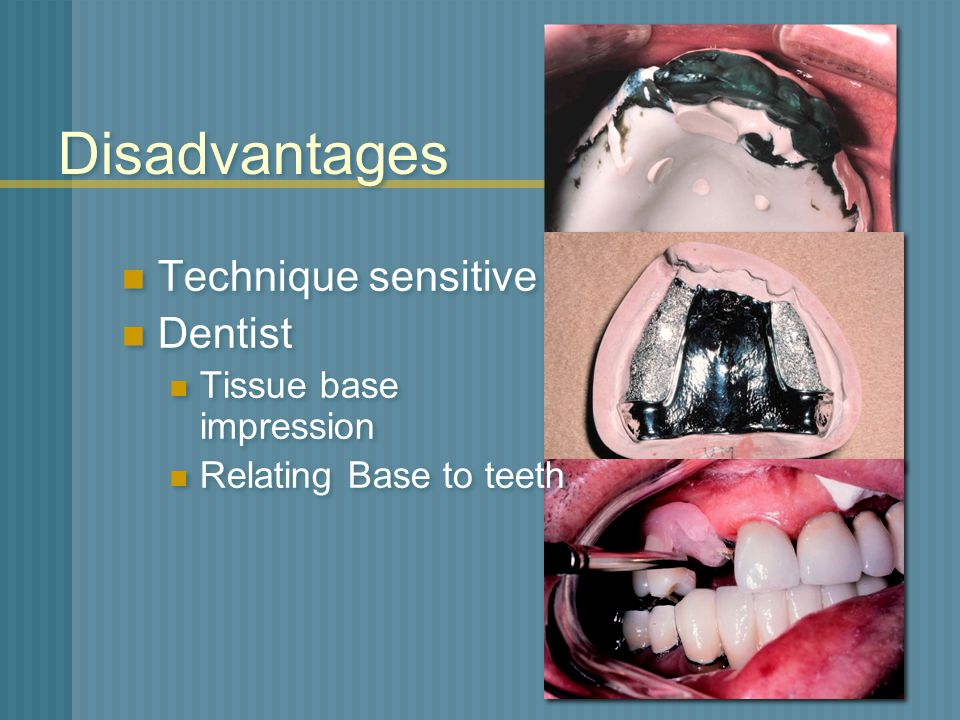 Disadvantages Technique sensitive Dentist Tissue base impression