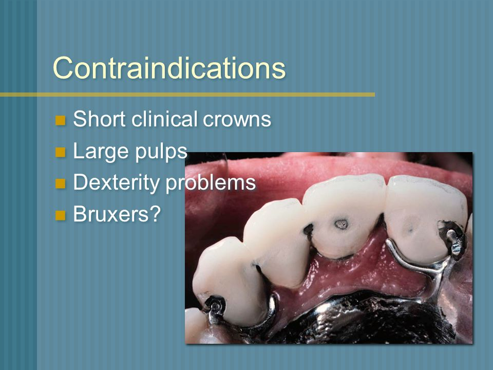 Contraindications Short clinical crowns Large pulps Dexterity problems