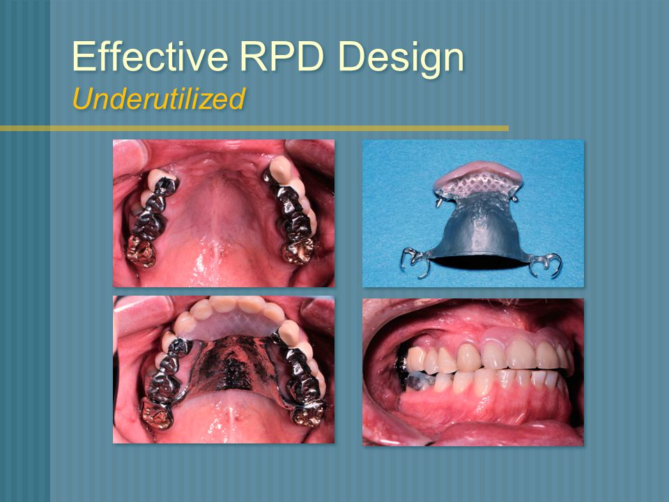 Effective RPD Design Underutilized