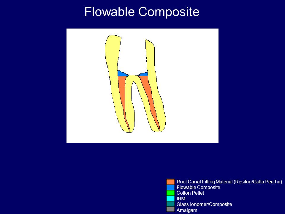 Flowable Composite Root Canal Filling Material (Resilon/Gutta Percha)