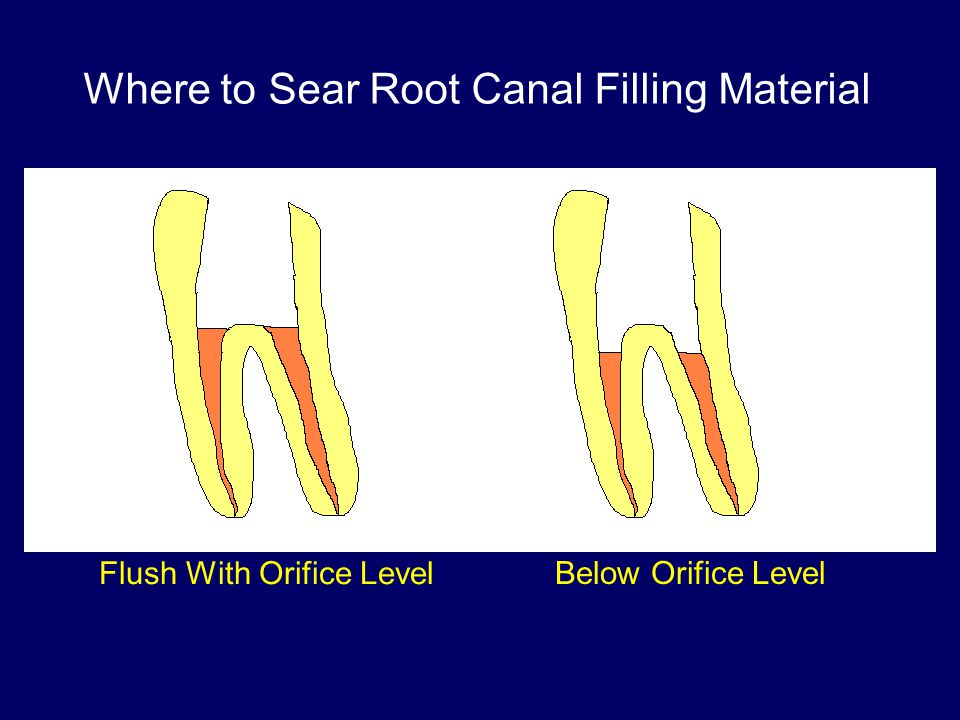 VS Where to Sear Root Canal Filling Material Flush With Orifice Level