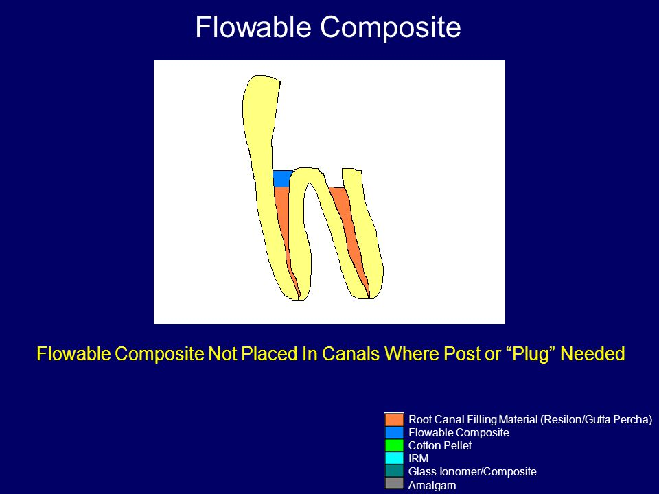 Flowable Composite Not Placed In Canals Where Post or Plug Needed