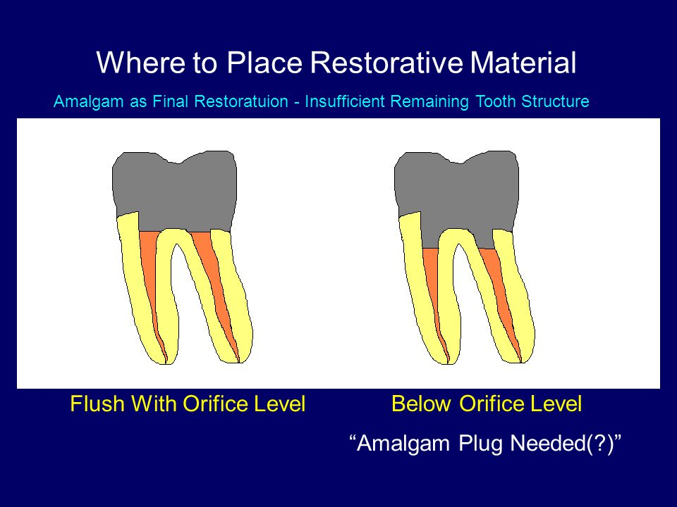 VS Where to Place Restorative Material Flush With Orifice Level