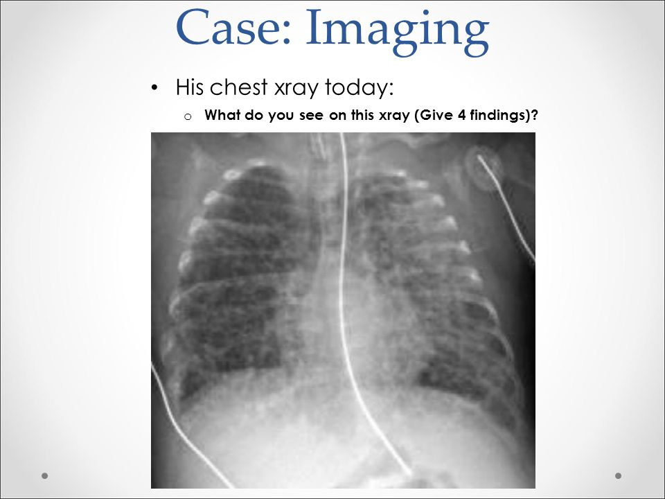 Case: Imaging His chest xray today: