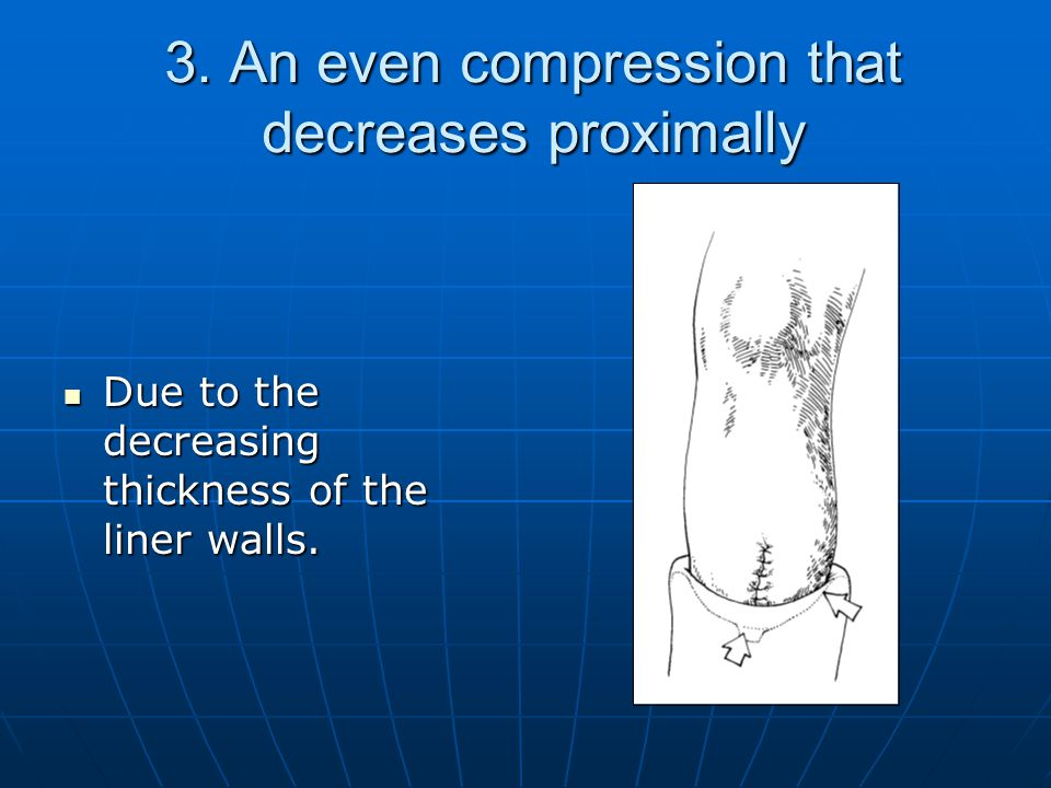 3. An even compression that decreases proximally