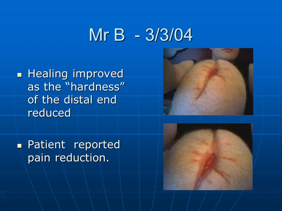 Mr B - 3/3/04 Healing improved as the hardness of the distal end reduced.