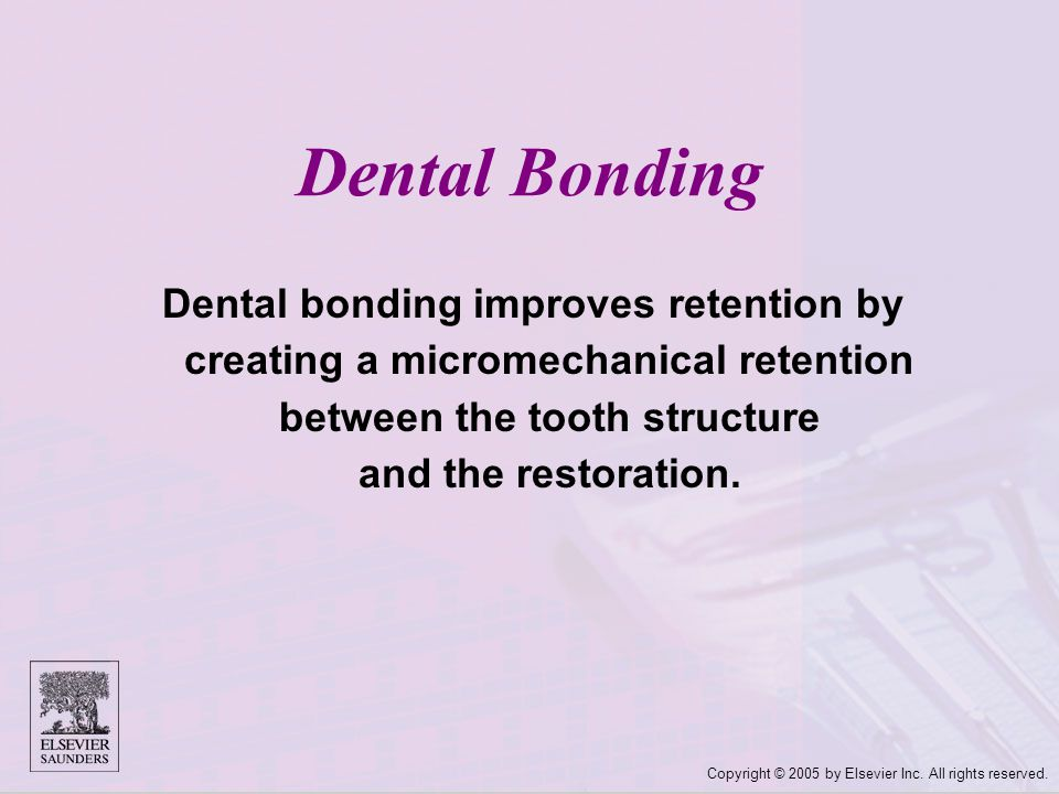 Dental Bonding Dental bonding improves retention by creating a micromechanical retention between the tooth structure and the restoration.