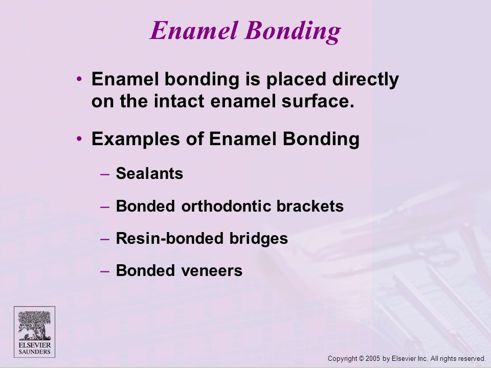 Enamel Bonding Enamel bonding is placed directly on the intact enamel surface. Examples of Enamel Bonding.