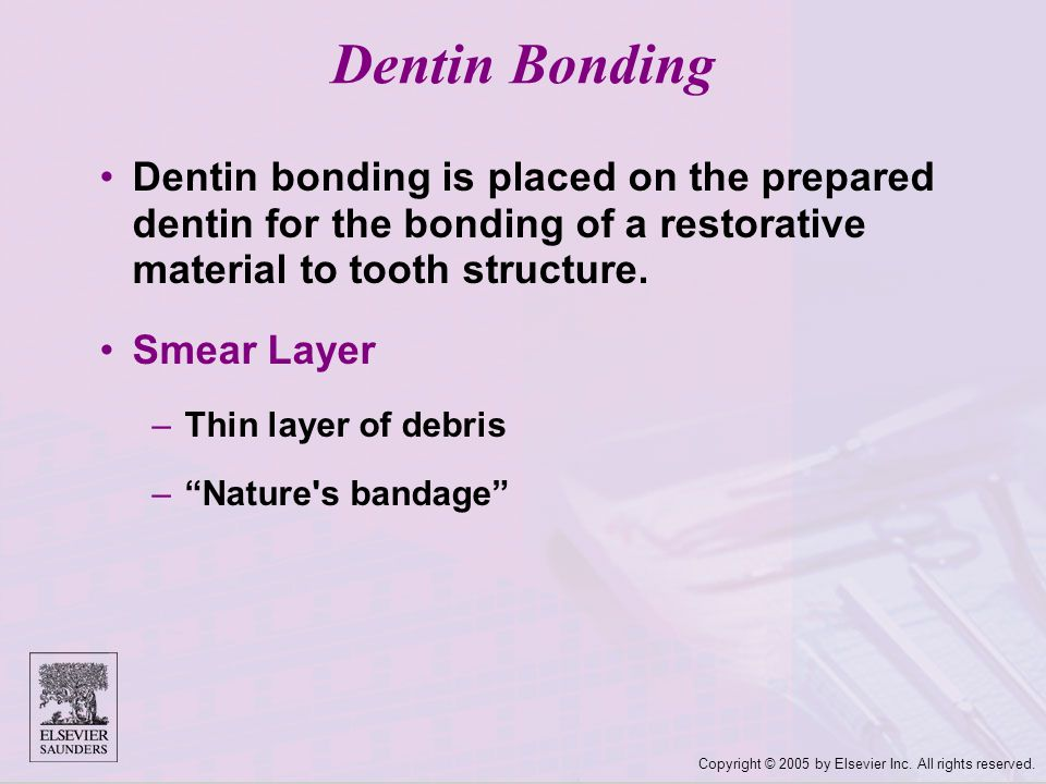 Dentin Bonding Dentin bonding is placed on the prepared dentin for the bonding of a restorative material to tooth structure.