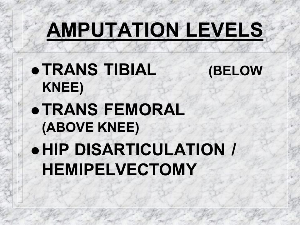 AMPUTATION LEVELS TRANS TIBIAL (BELOW KNEE) TRANS FEMORAL (ABOVE KNEE)