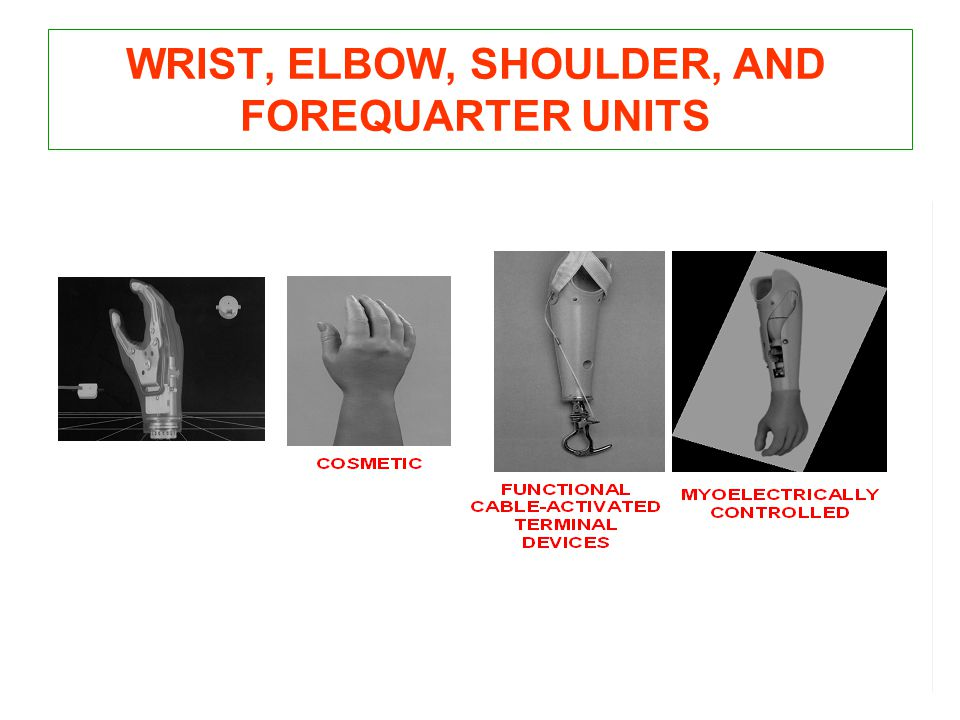 WRIST, ELBOW, SHOULDER, AND FOREQUARTER UNITS