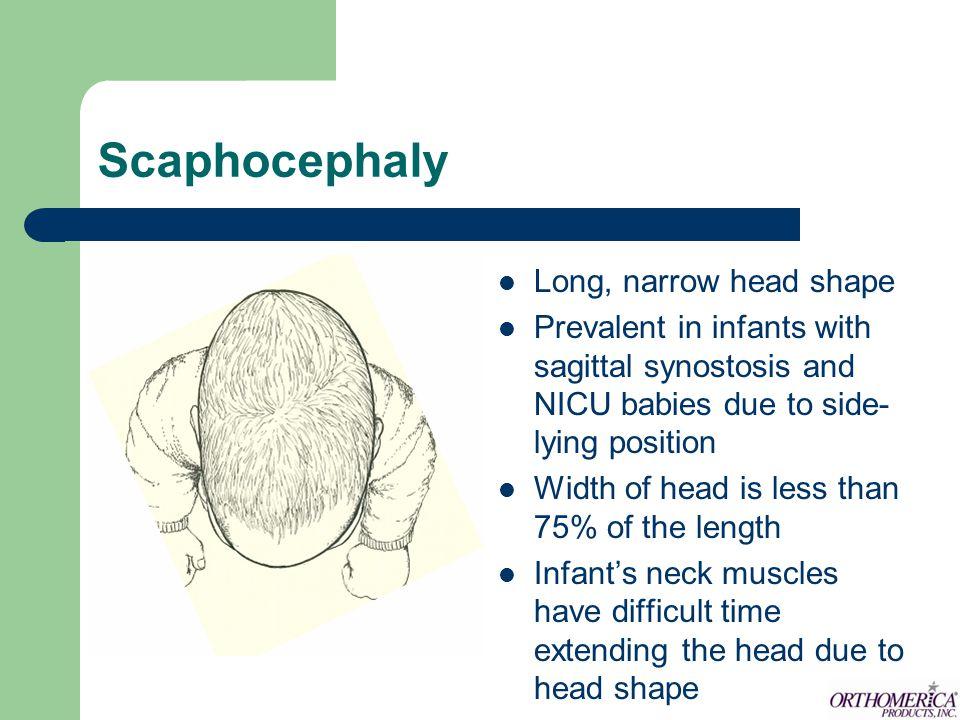 Scaphocephaly Long, narrow head shape