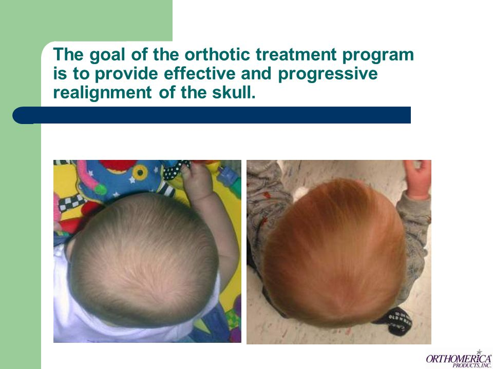 The goal of the orthotic treatment program is to provide effective and progressive realignment of the skull.