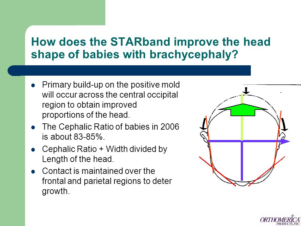How does the STARband improve the head shape of babies with brachycephaly