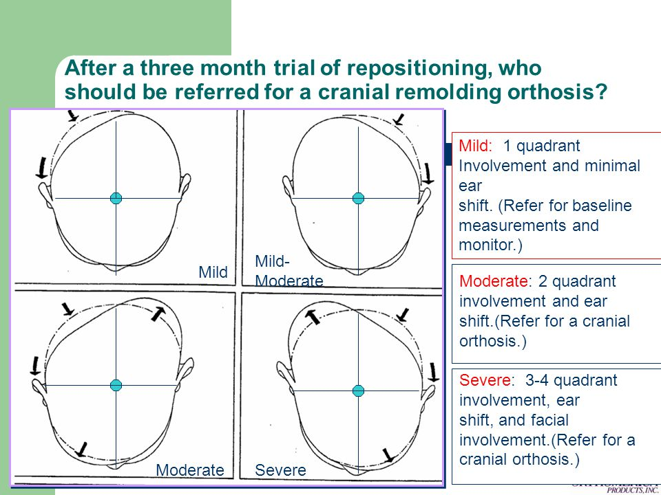 After a three month trial of repositioning, who should be referred for a cranial remolding orthosis