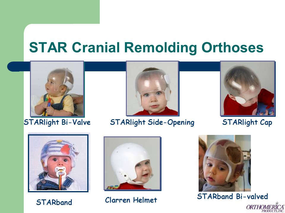STAR Cranial Remolding Orthoses