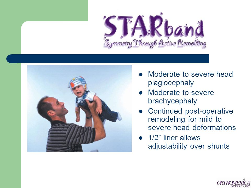 Moderate to severe head plagiocephaly