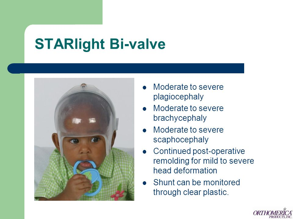 STARlight Bi-valve Moderate to severe plagiocephaly