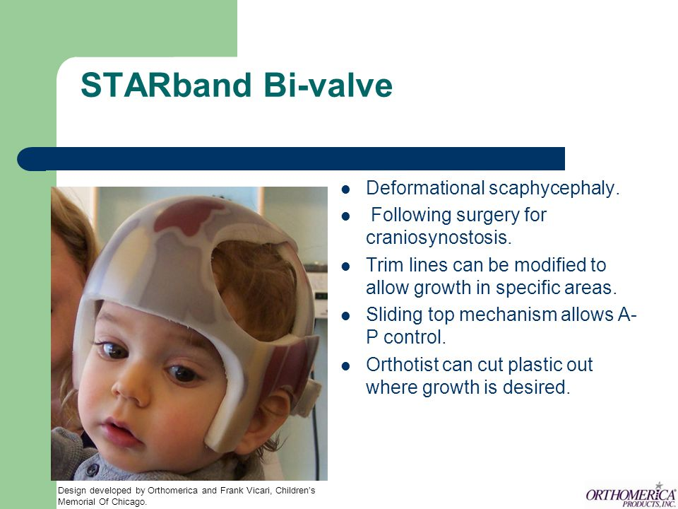 STARband Bi-valve Deformational scaphycephaly.