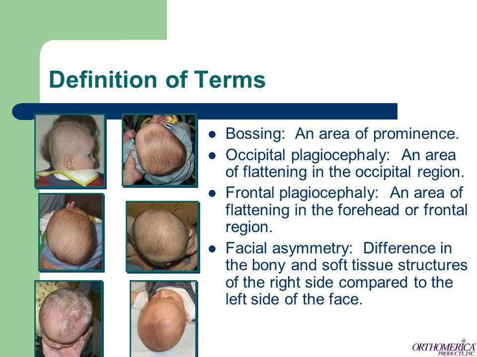 Definition of Terms Bossing: An area of prominence.