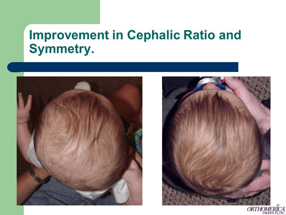 Improvement in Cephalic Ratio and Symmetry.
