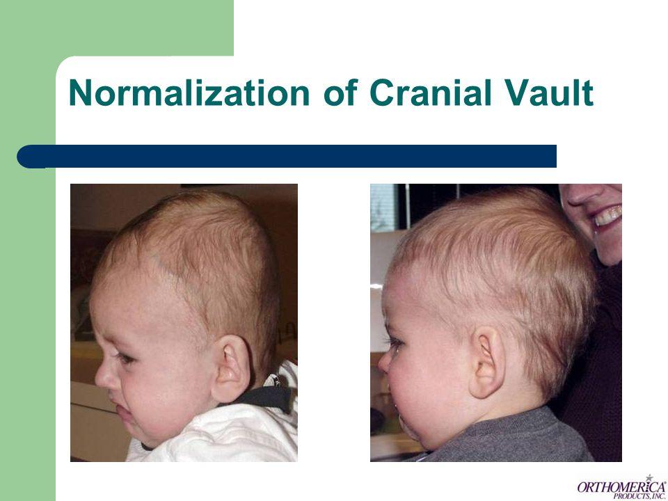 Normalization of Cranial Vault
