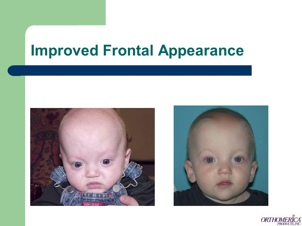 Improved Frontal Appearance