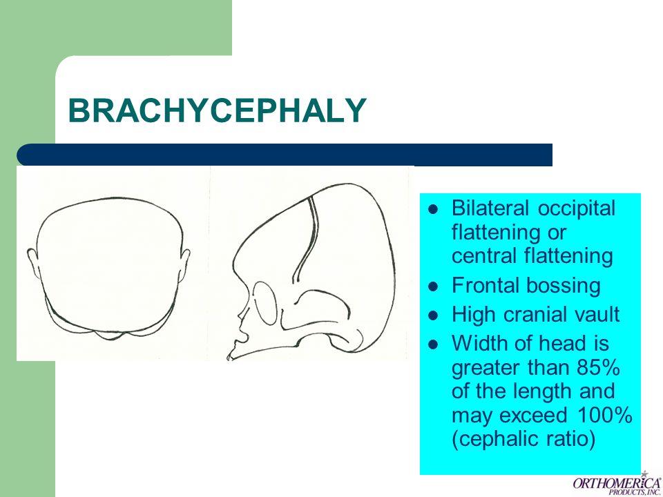 BRACHYCEPHALY Bilateral occipital flattening or central flattening