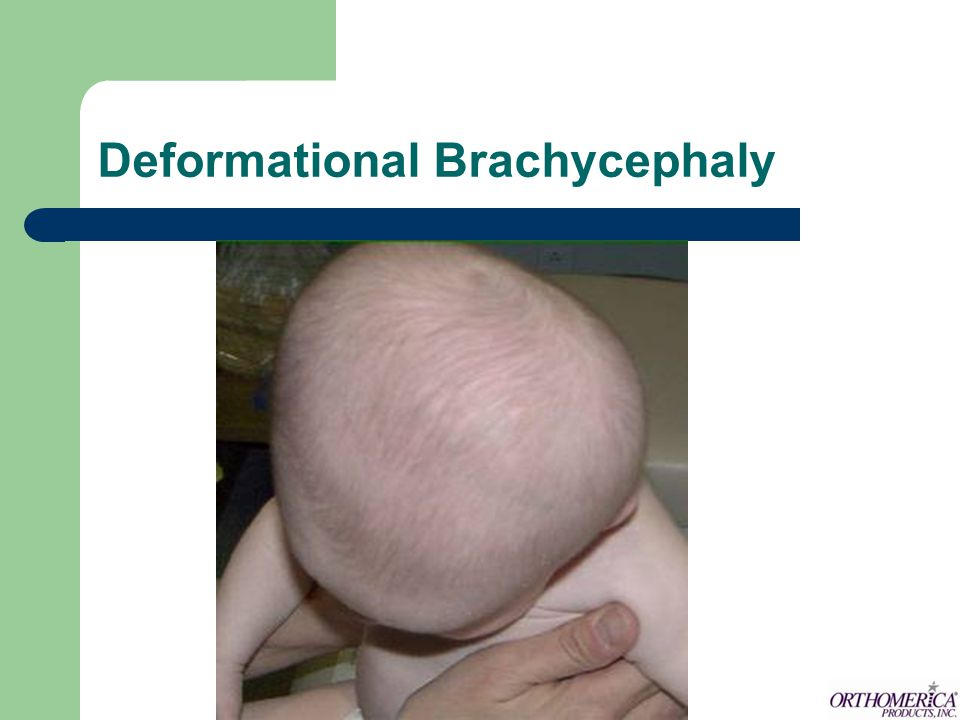 Deformational Brachycephaly
