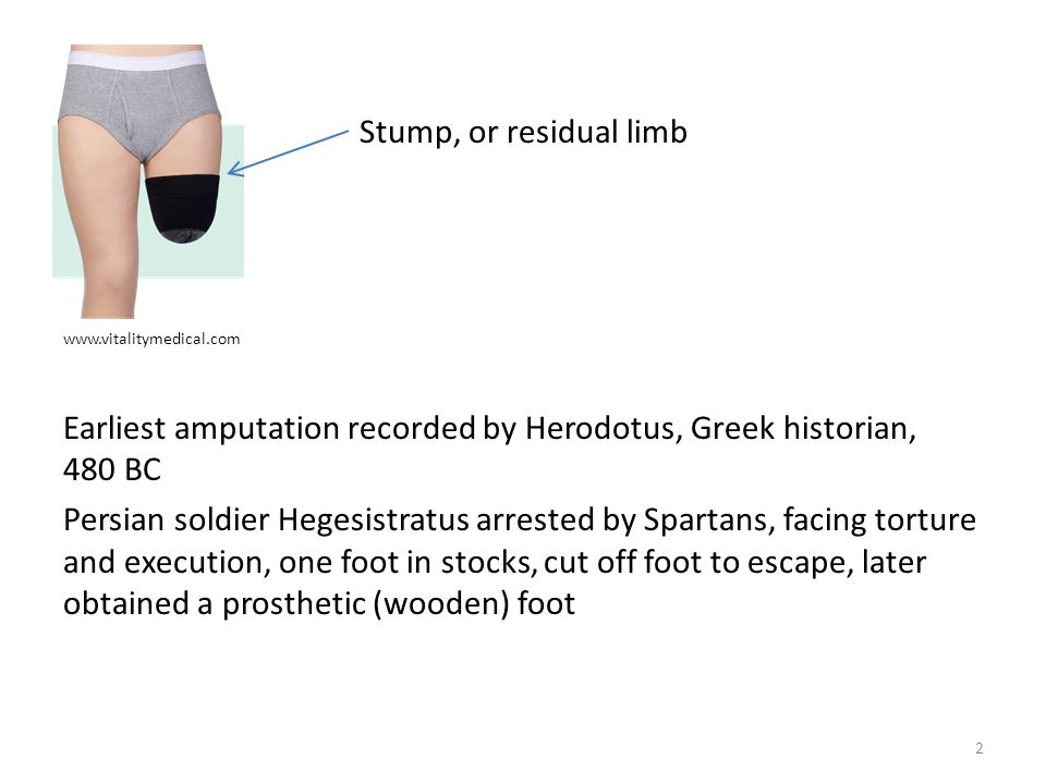 Stump, or residual limb www.vitalitymedical.com.