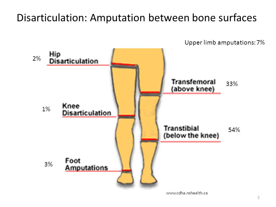 Disarticulation: Amputation between bone surfaces