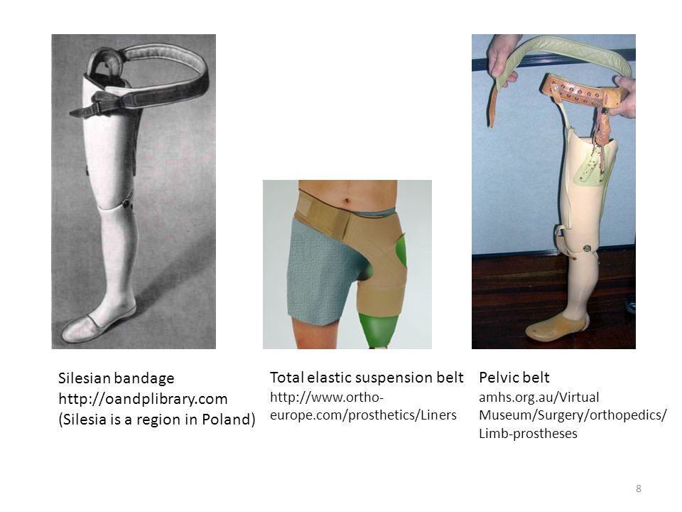 (Silesia is a region in Poland) Total elastic suspension belt