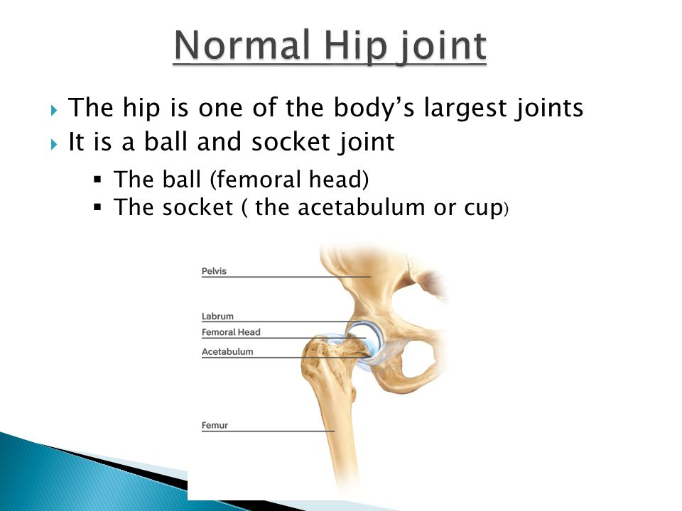 Normal Hip joint The hip is one of the body's largest joints