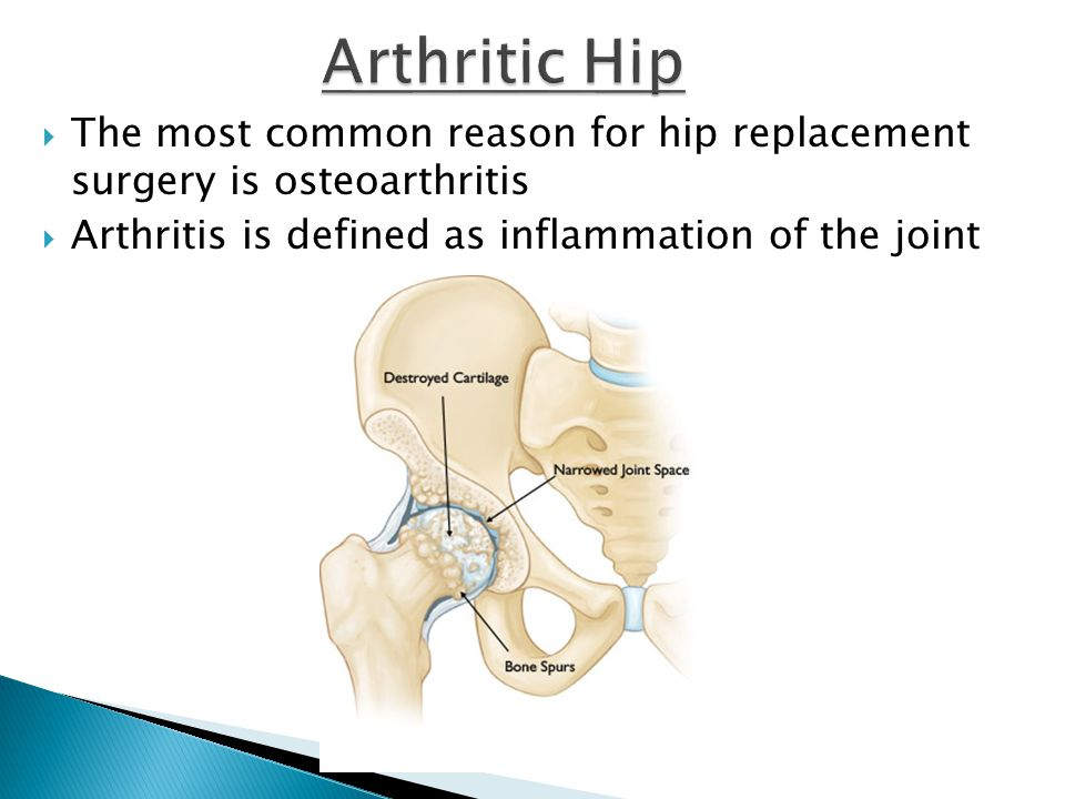 Arthritic Hip The most common reason for hip replacement surgery is osteoarthritis.