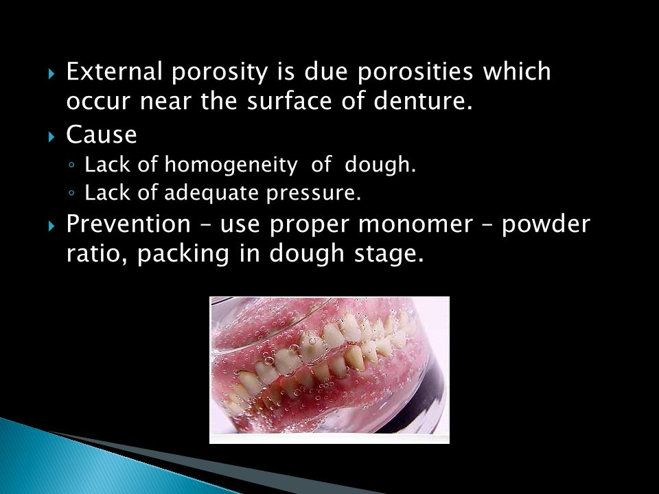 External porosity is due porosities which occur near the surface of denture.